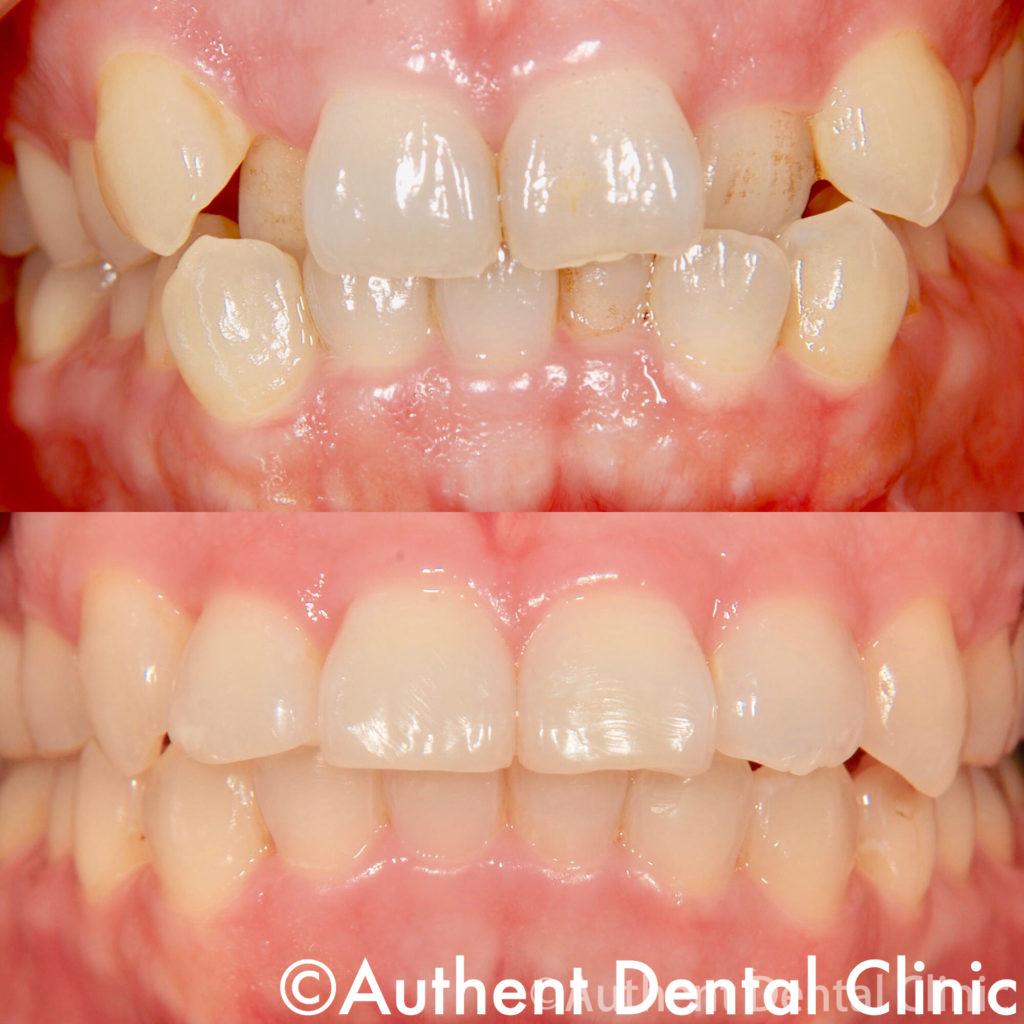 八重歯 20代 女性