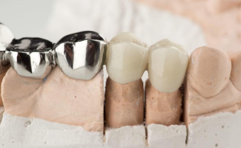 セラミック素材と銀歯の比較