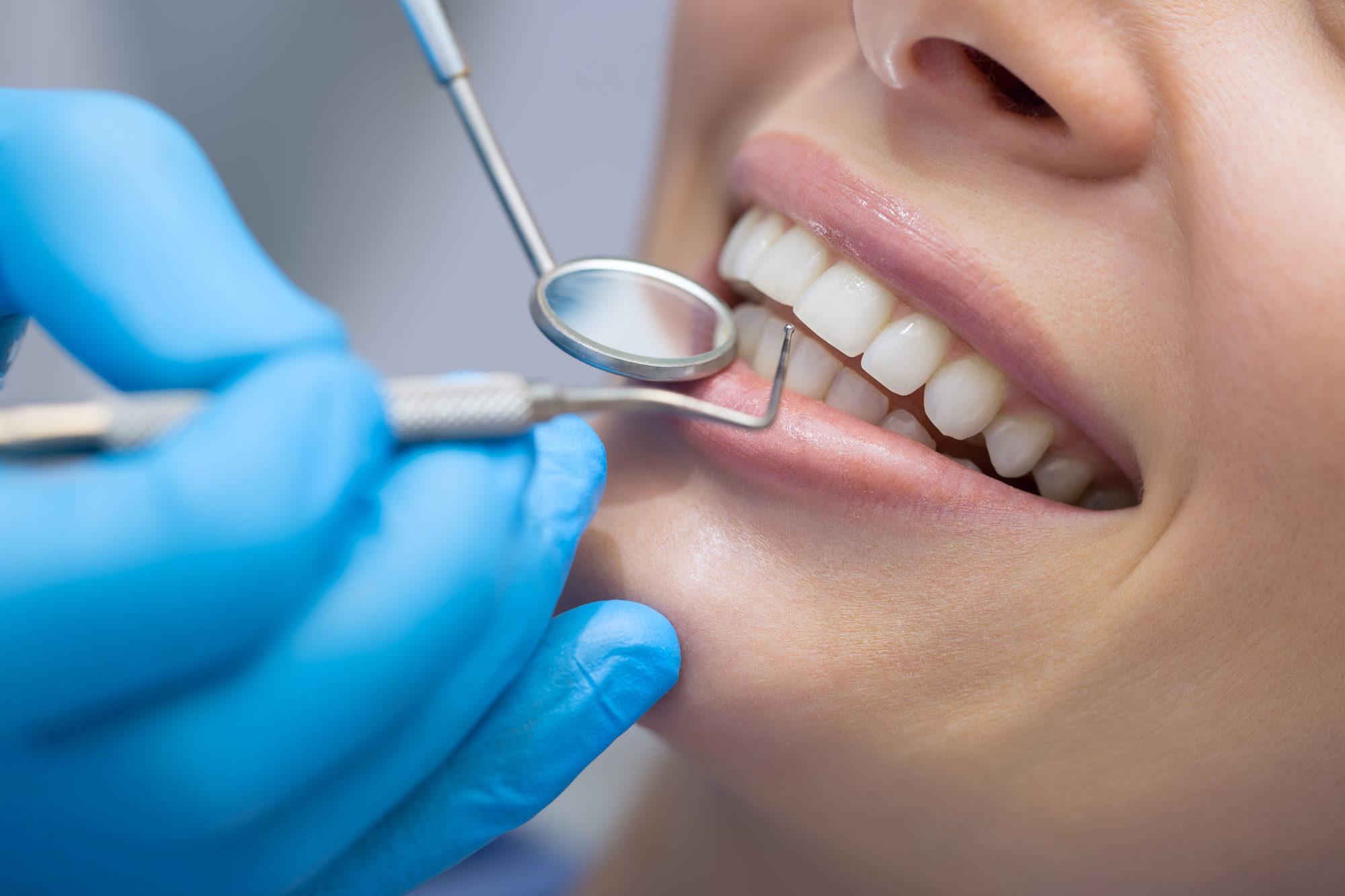 プロによる歯石の除去