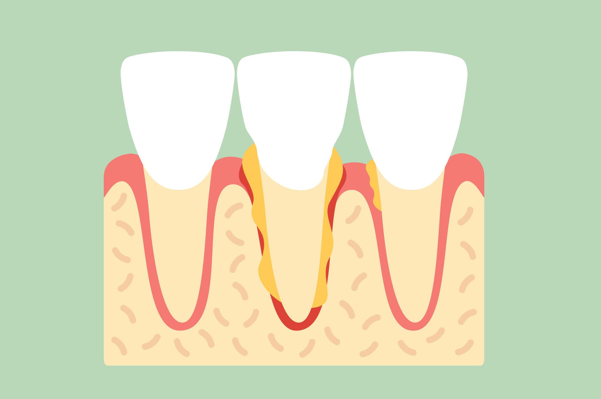歯垢がたまり、歯石となっていくイメージ