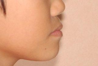 小児矯正 受け口(反対咬合)治療後