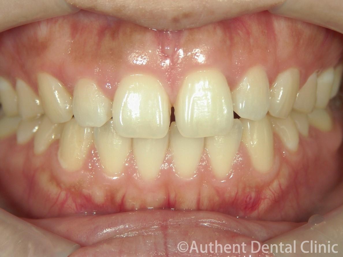 すきっ歯のセラミック矯正 治療前
