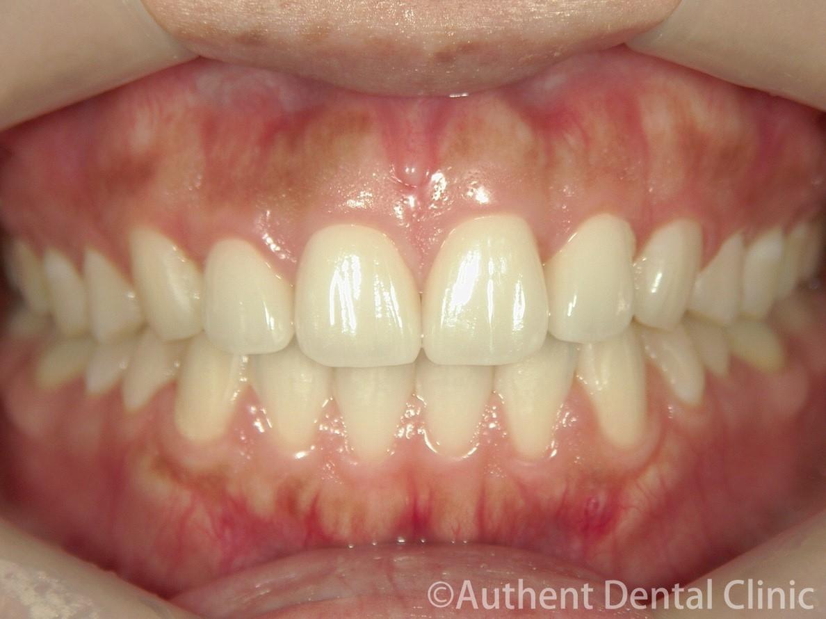 すきっ歯のセラミック矯正 治療後